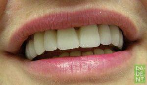 Osmijeh!